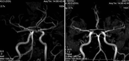 Полная задняя трифуркация левой внутренней сонной артерии